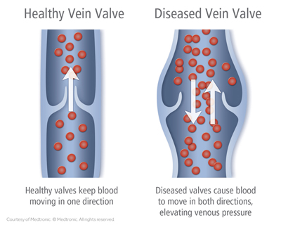 MedicalSvs-Laser Vein Treatment2